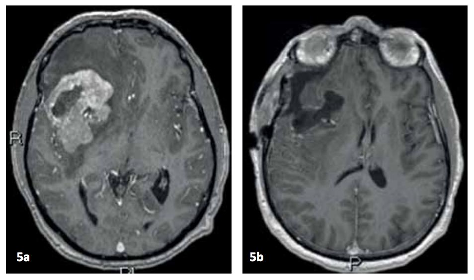 blödning i lillhjärnan prognos